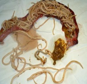 Roundworm is another example of parasites that mimic bronchitis.