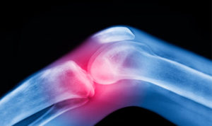 Get all natural pain releif products for joint pain relief and more.